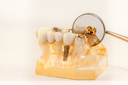 Gold onlay cemented on molar