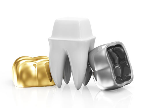 Refine Dental Metal